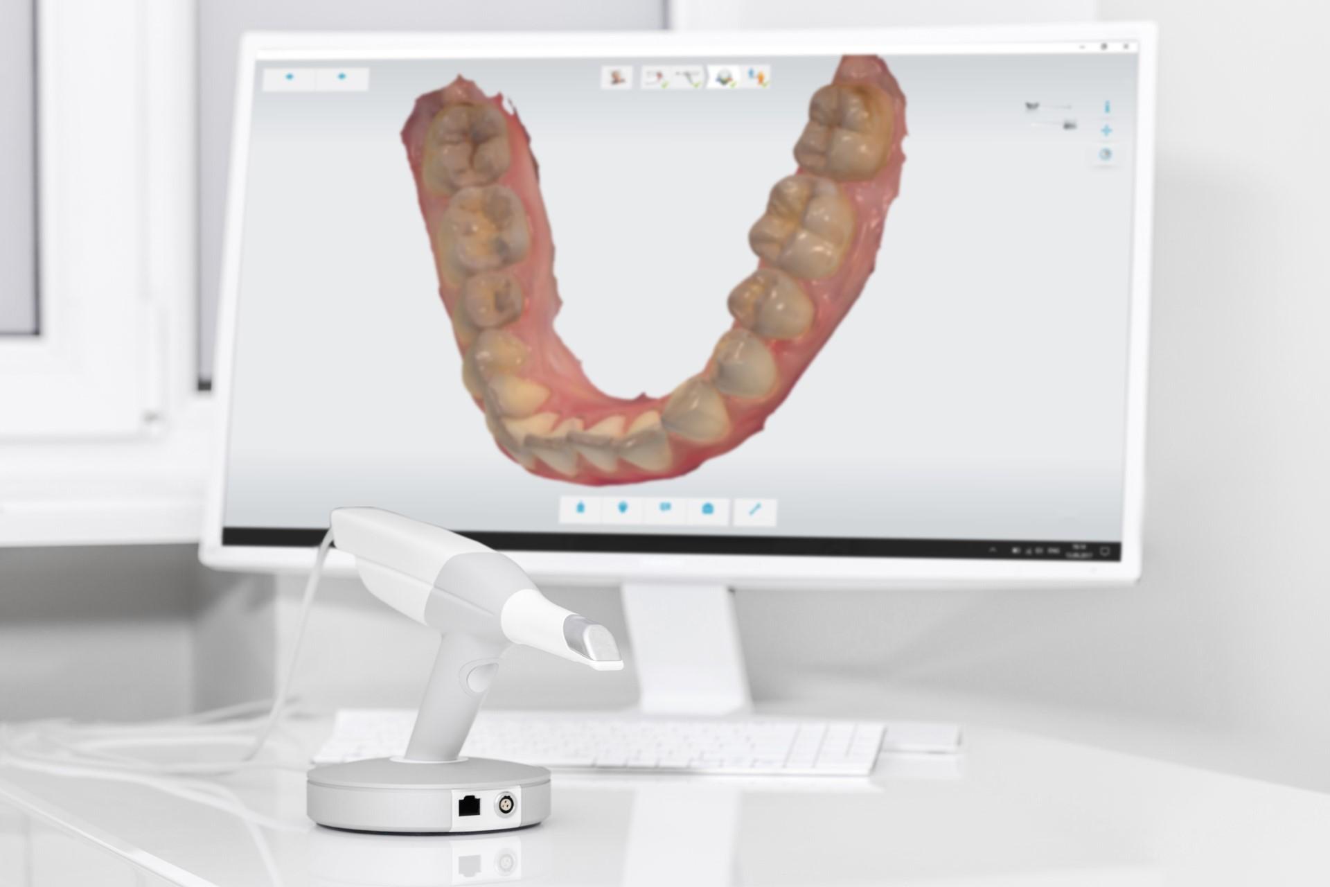 casos clínicos dentales clínica dental valencia