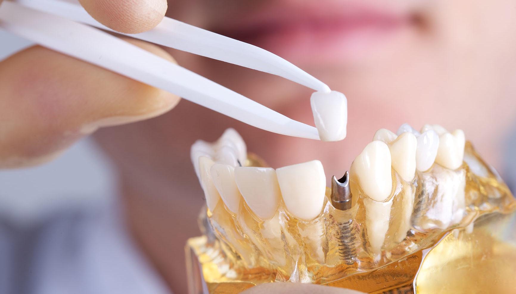 implantes dentales en clinica dental valencia sala y moreno