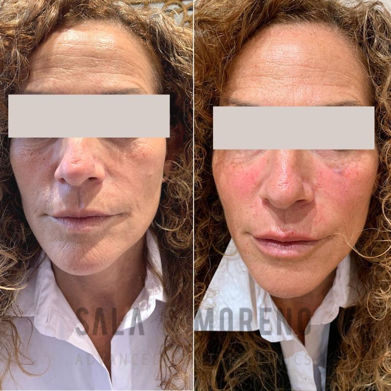 Tratamiento real de aumento de labios con ácido hialurónico en Sala & Moreno